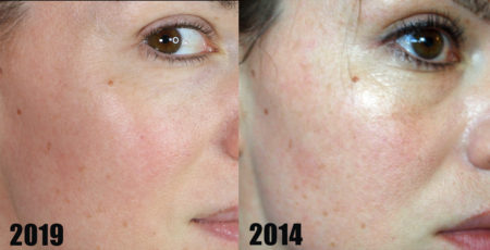 Real Results From At Home Peels 5 Yrs Later Life And Diy